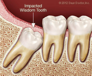 impacted-wisdom-tooth-300x249