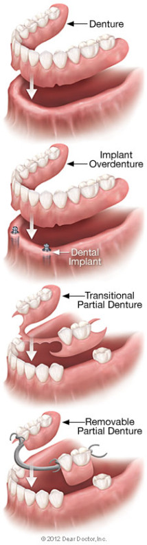 removable-denture-types-214x792