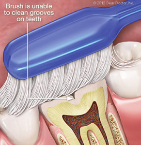 toothbrush-cleaning-teeth-291x300